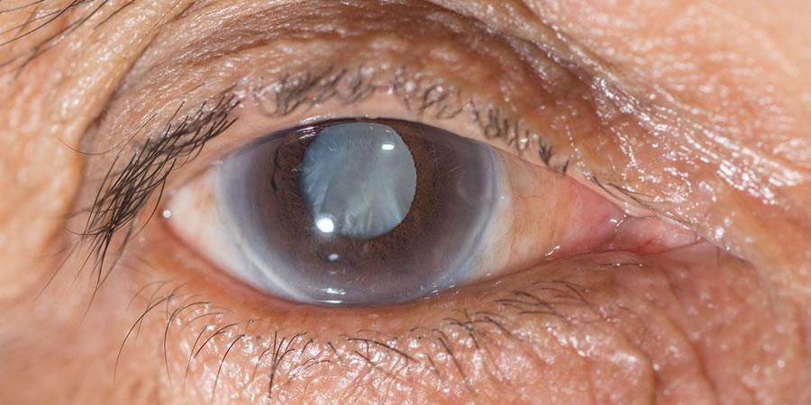 Glaucoma afectará la vista de 11 millones de personas en 2020