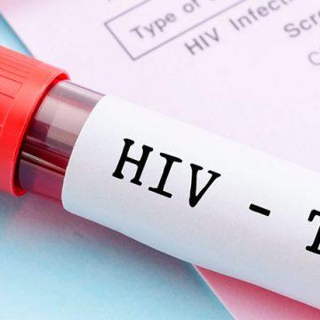 Un experimento inédito deja a un paciente libre del virus del sida en Brasil