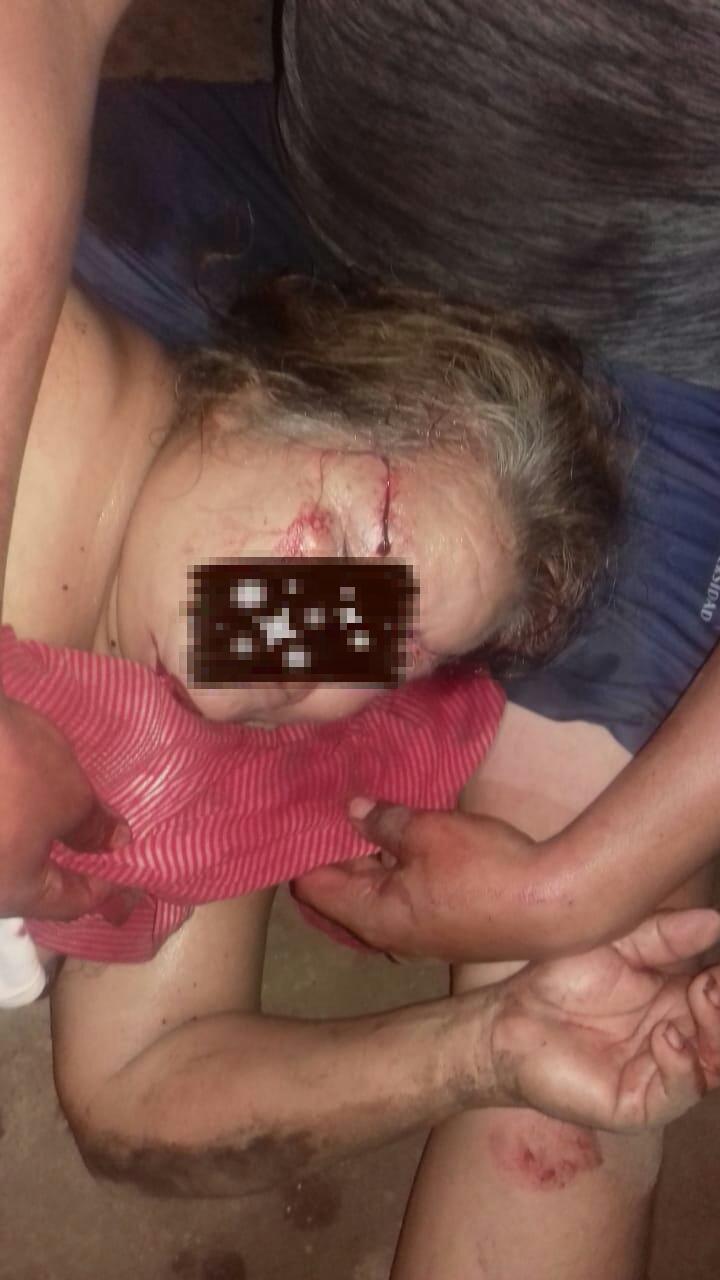 En Mazatán un sujeto lesionó con machete a su esposa, suegra y cuñada
